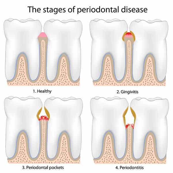 Cosmetic Dentist in San Marcos, CA. Randall Leads, DDS.